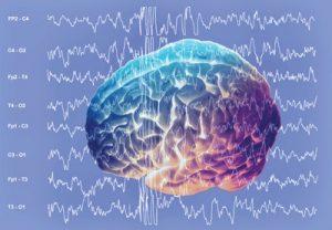 sostojanija-mozga