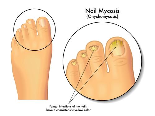Мировые стандарты лечения грибка на ногтях