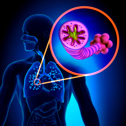 an overview of the chronic lung condition of asthma in medical research An overview of the chronic lung condition of asthma in medical research pages 4 words 736 view full essay more essays like this.